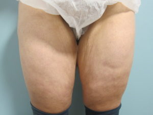 Preop Thigh Lift