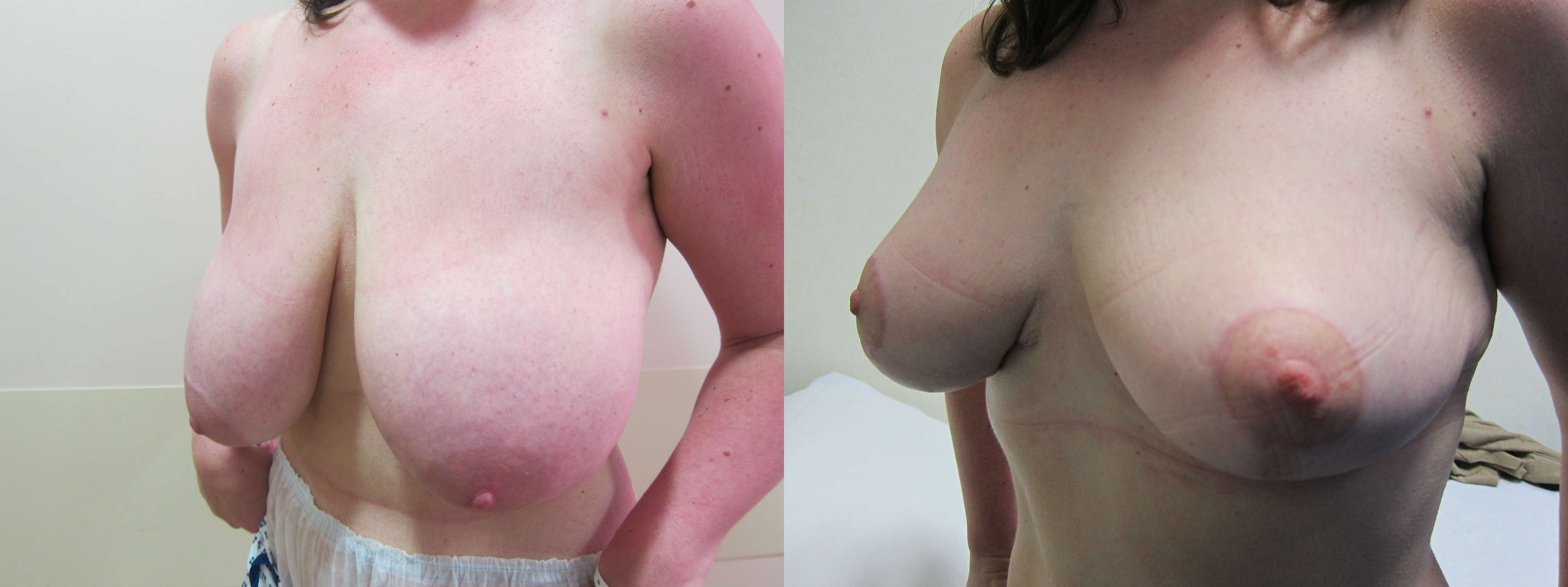 Breast Reduction Before After Pictures - Perimeter