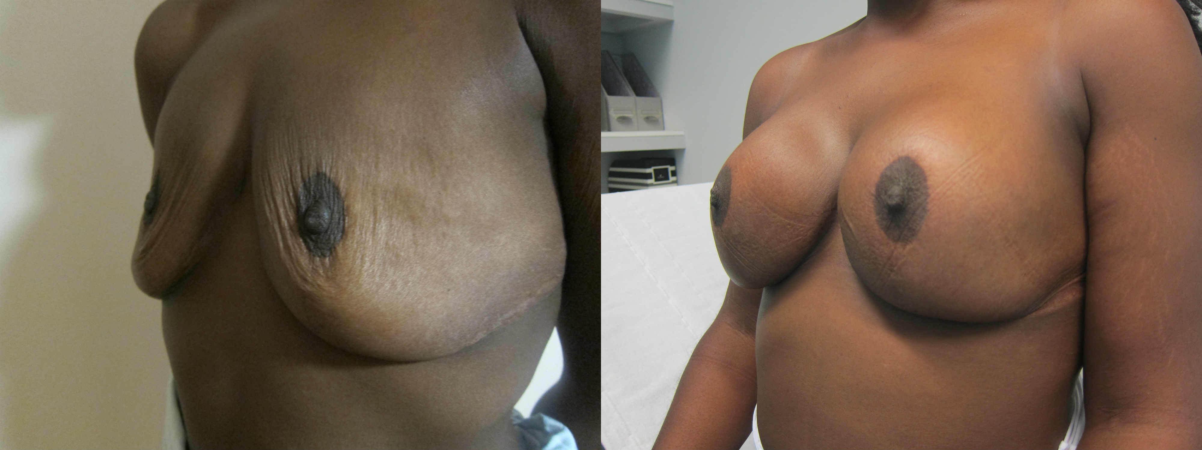 Breast Implants after Reduction