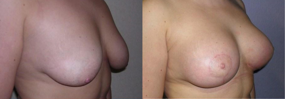 breast lift information