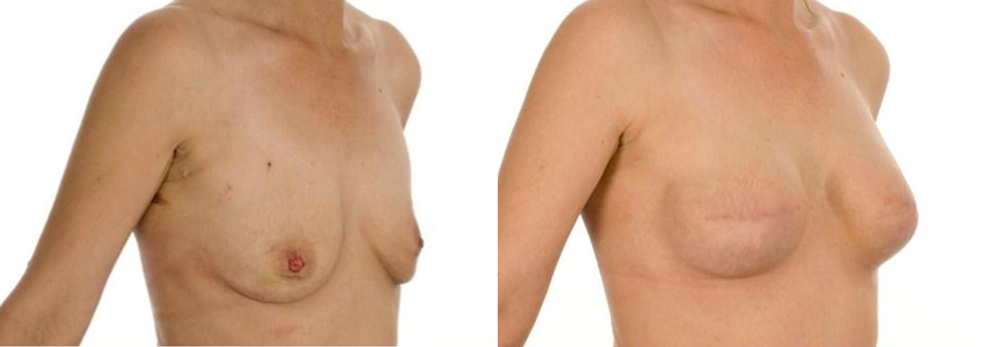 Breast reconstruction uk picture 415