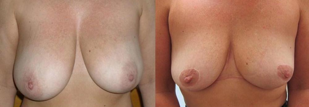 breast reduction procedures