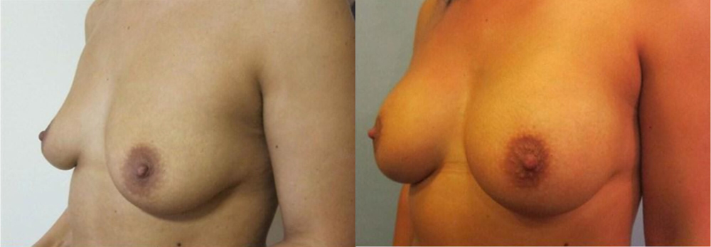breast enlargement with low profile round implants