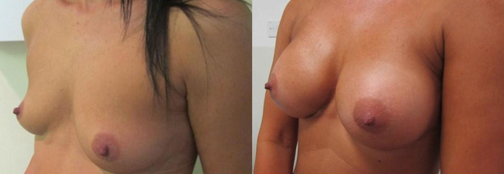 supernatural breast enlargement