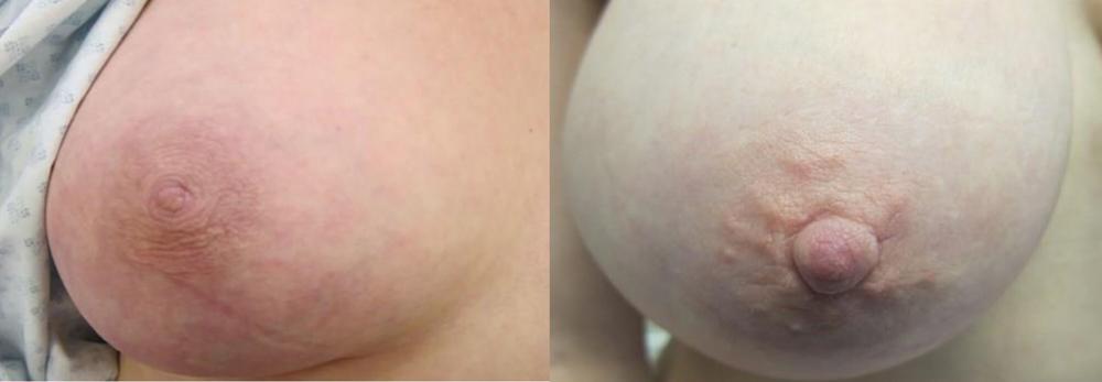 inverted nipple operation