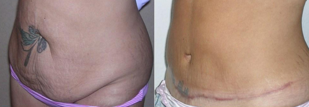 Green tea extract help lose weight image 6