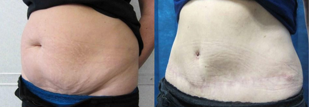 tummy tuck services in birmingham