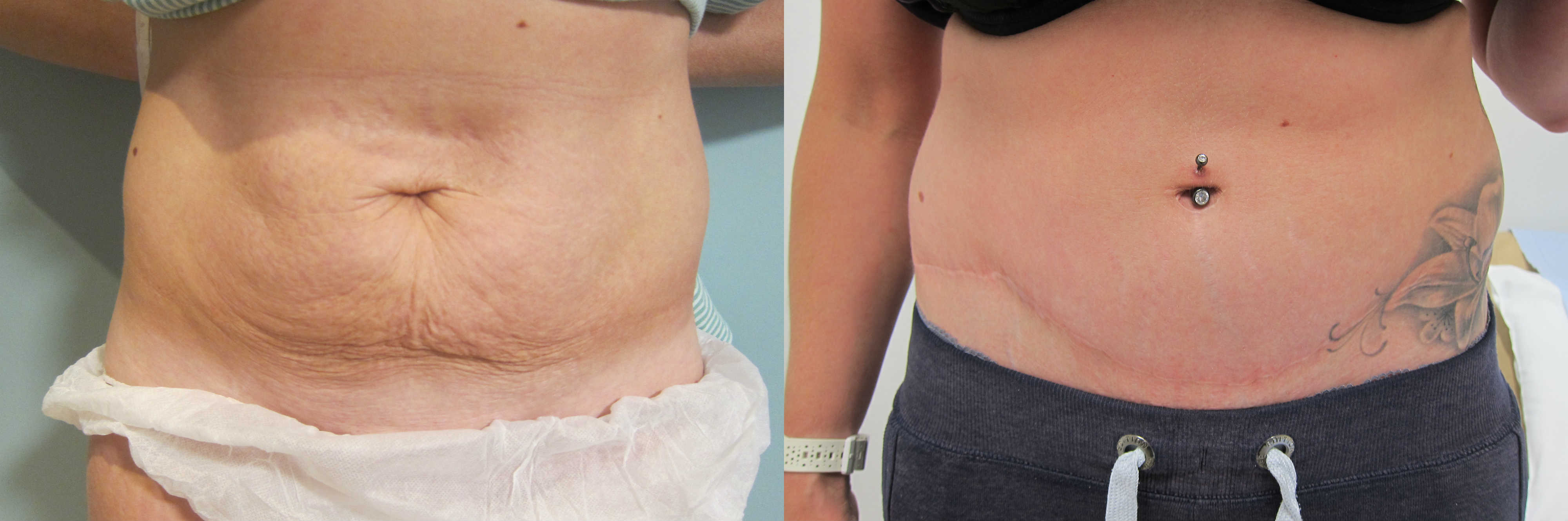 Tummy Tuck Before And After Photos   The STAIANO Clinic, Birmingham