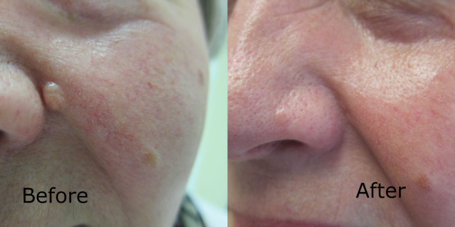 Same Day Mole Removal - Staiano Plastic Surgery
