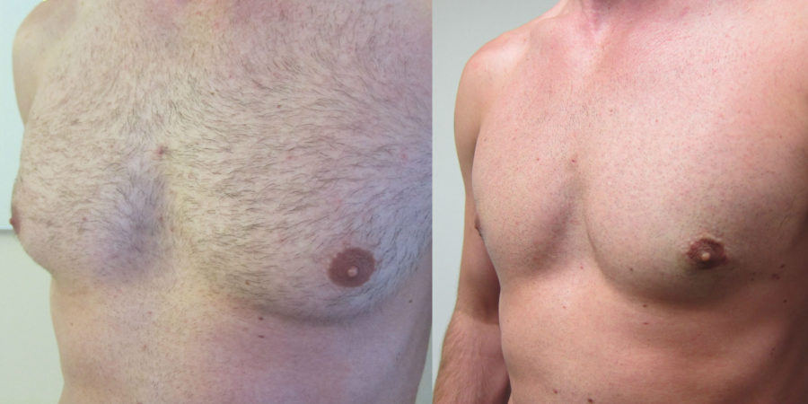 Gyno Correction Without Scars
