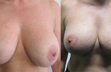 Breast Lift After Implant Removal And Downsize