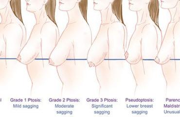 breasts perky