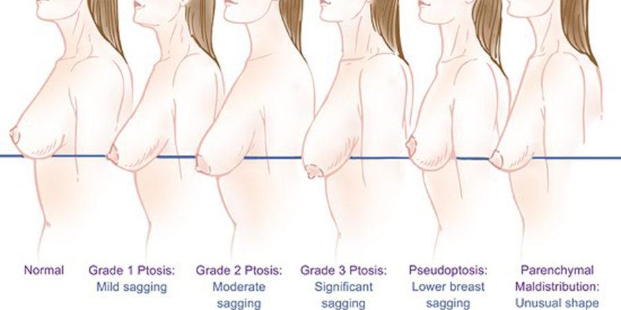 Older nude celeb pics